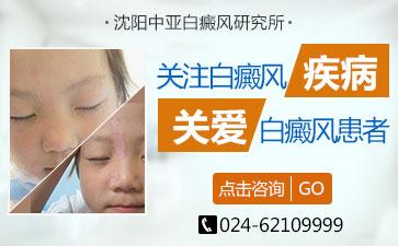 小孩子患上白癜风病要怎么预防